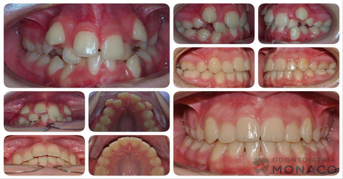 Denti affollati - bambino