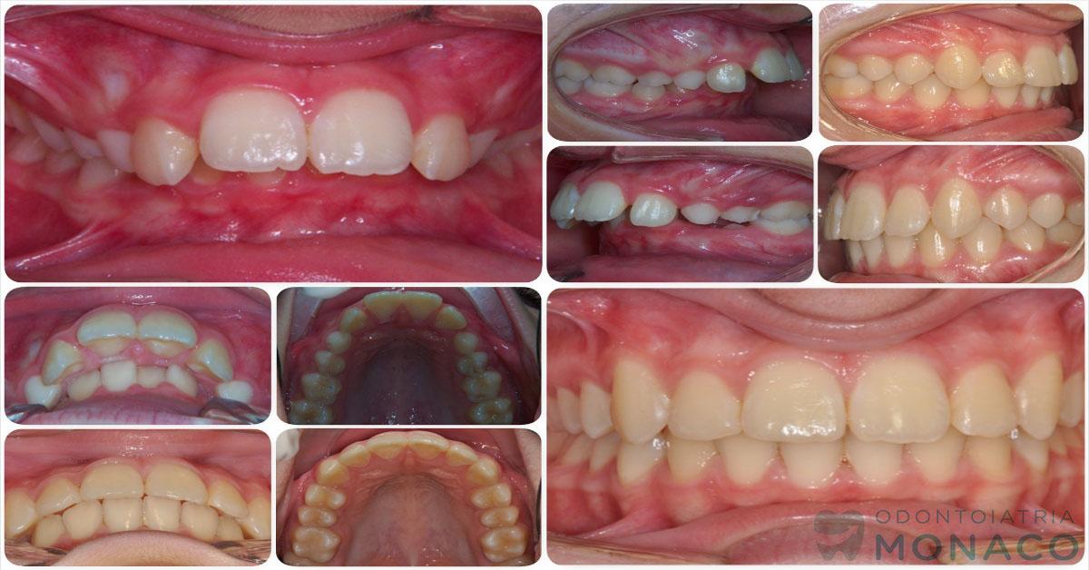 Denti sporgenti - adolescente