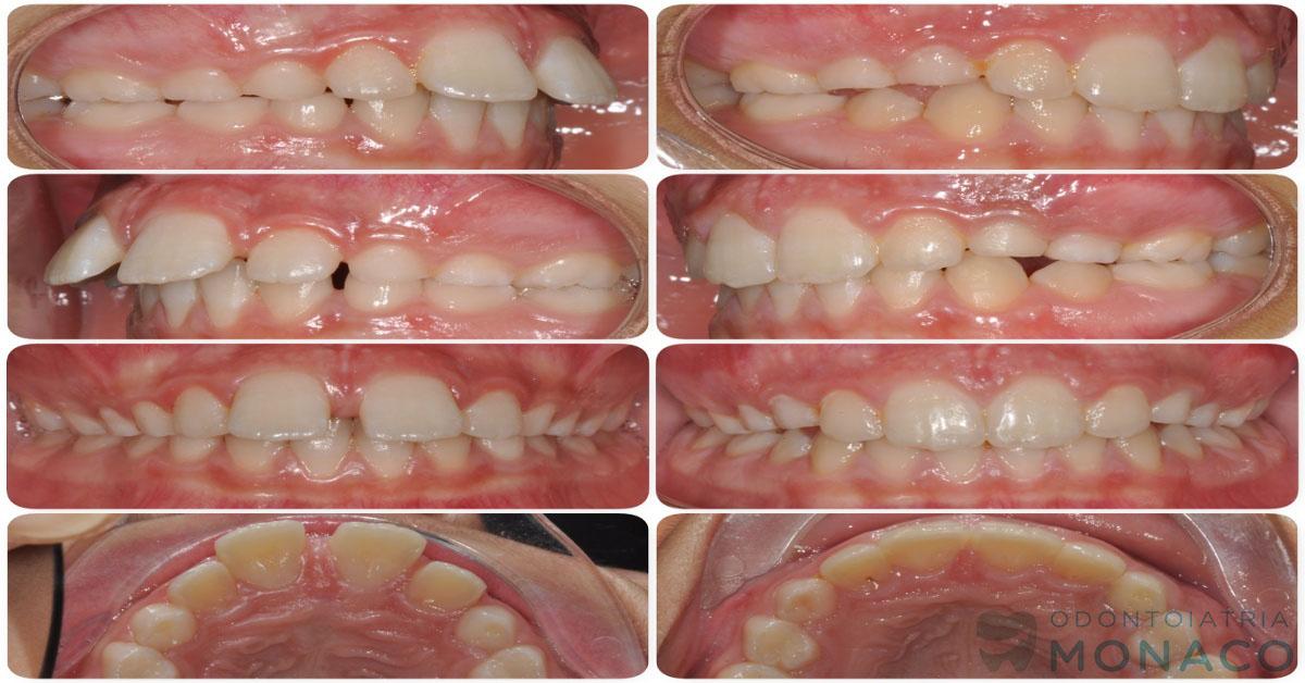 Denti sporgenti - bambino