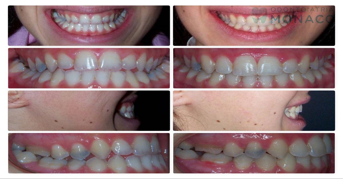 Ortodontico chirurgici