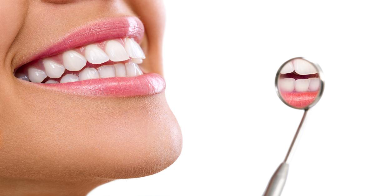 5 buoni motivi per fare ortodonzia